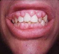 gingivitisx