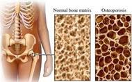 Osteoporoza_i_ishrana