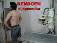 Rendgen