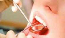 Hrana koja razara zube