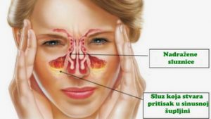 Upala sinusa – jesenje temperaturne oscilacije glavni uzročnik